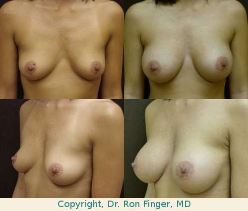 Augmentation mammoplasty with 325 ml on right, 300 ml left, High Profile gel, prepectoral