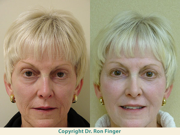 Savannah Facial Fat Transfer