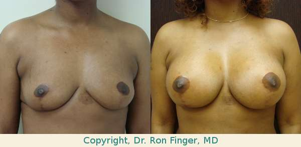 Patient had previous mastopexy. Pre and post op photos represent 375 cc High Profile Gel implants, pre-pectoral (sub-glandular).