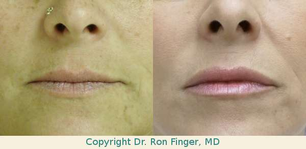 Juvederm savannah lip injections