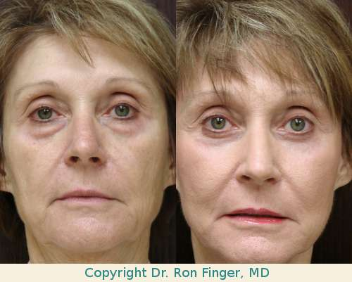 lower lid blepharoplasty savannah fraxel laser