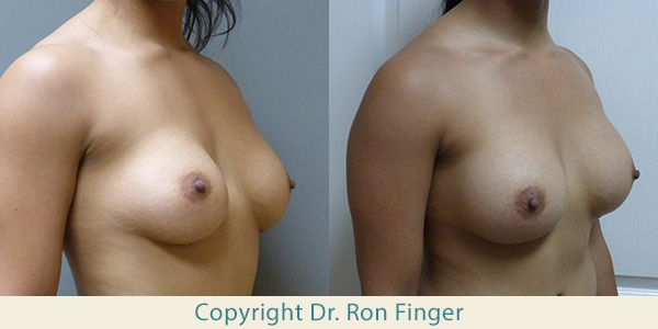 25 year old with removal of 225 saline implants and replace with 425 ml High Profile gel implants, submuscular