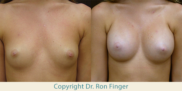20 year old with submuscular 375 ml High Profile gel implants, one month post operative.