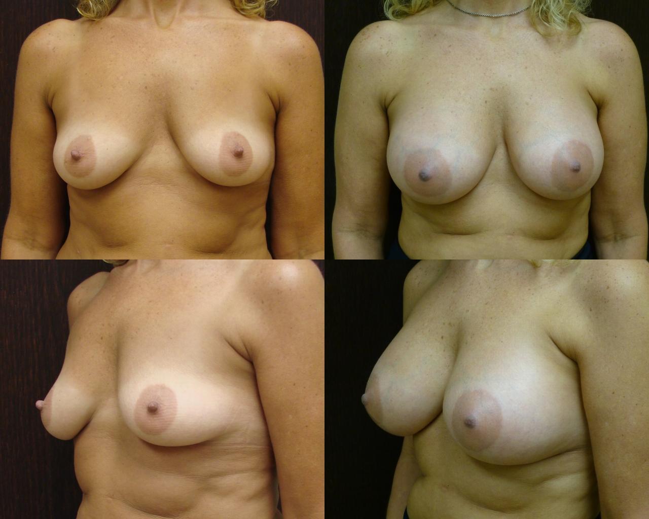 Breast Enhancement Savannah Georgia Breast Augmentation