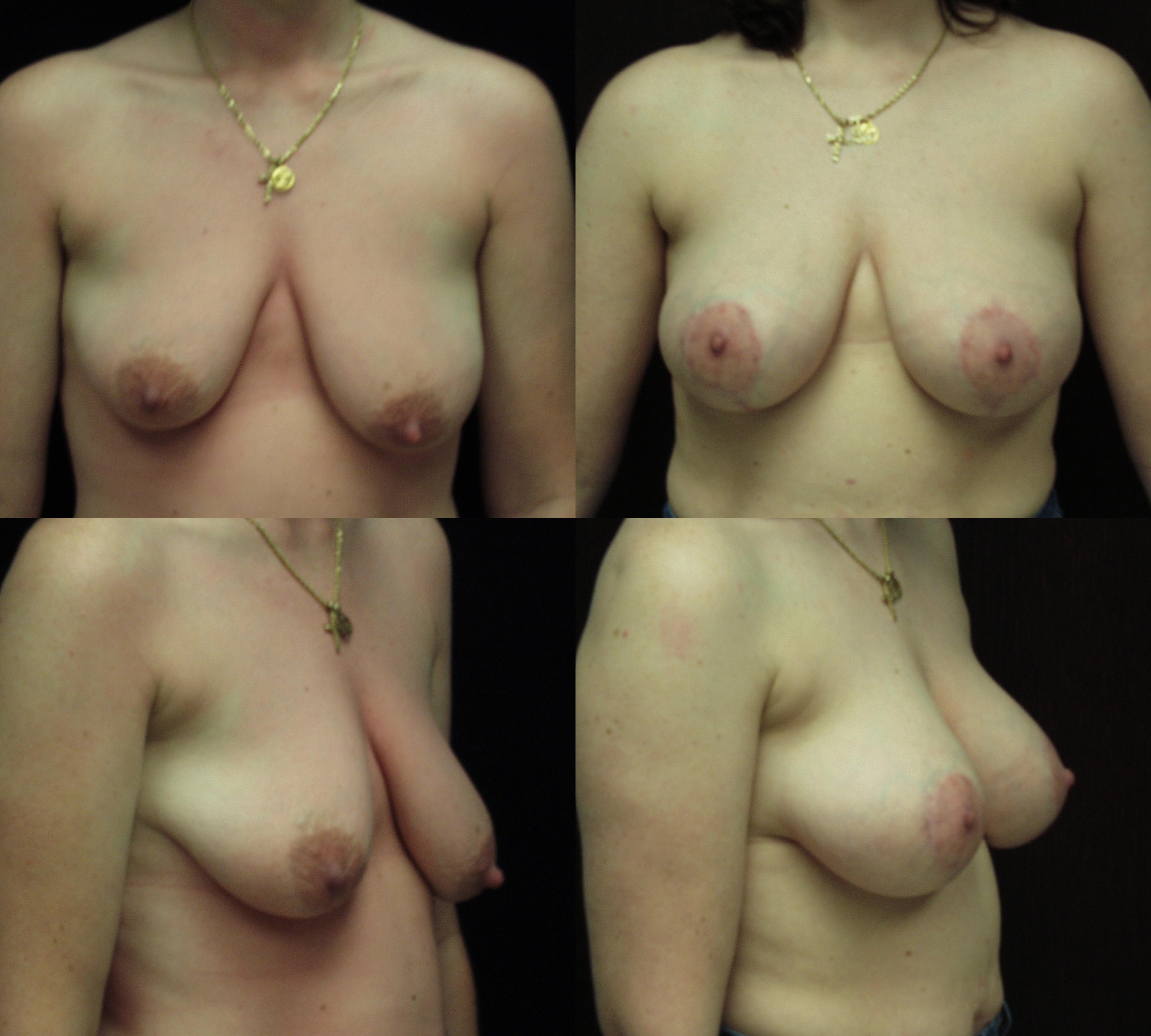 breast implants savannah breast augmentation