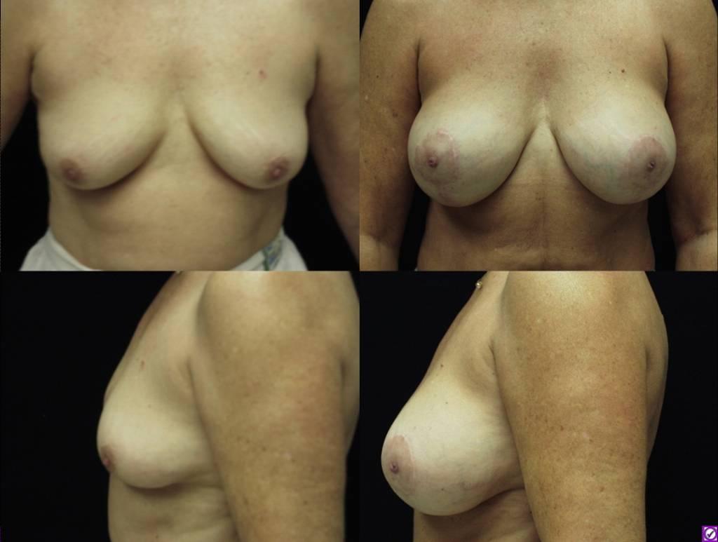 breast lift savannah breast augmentation