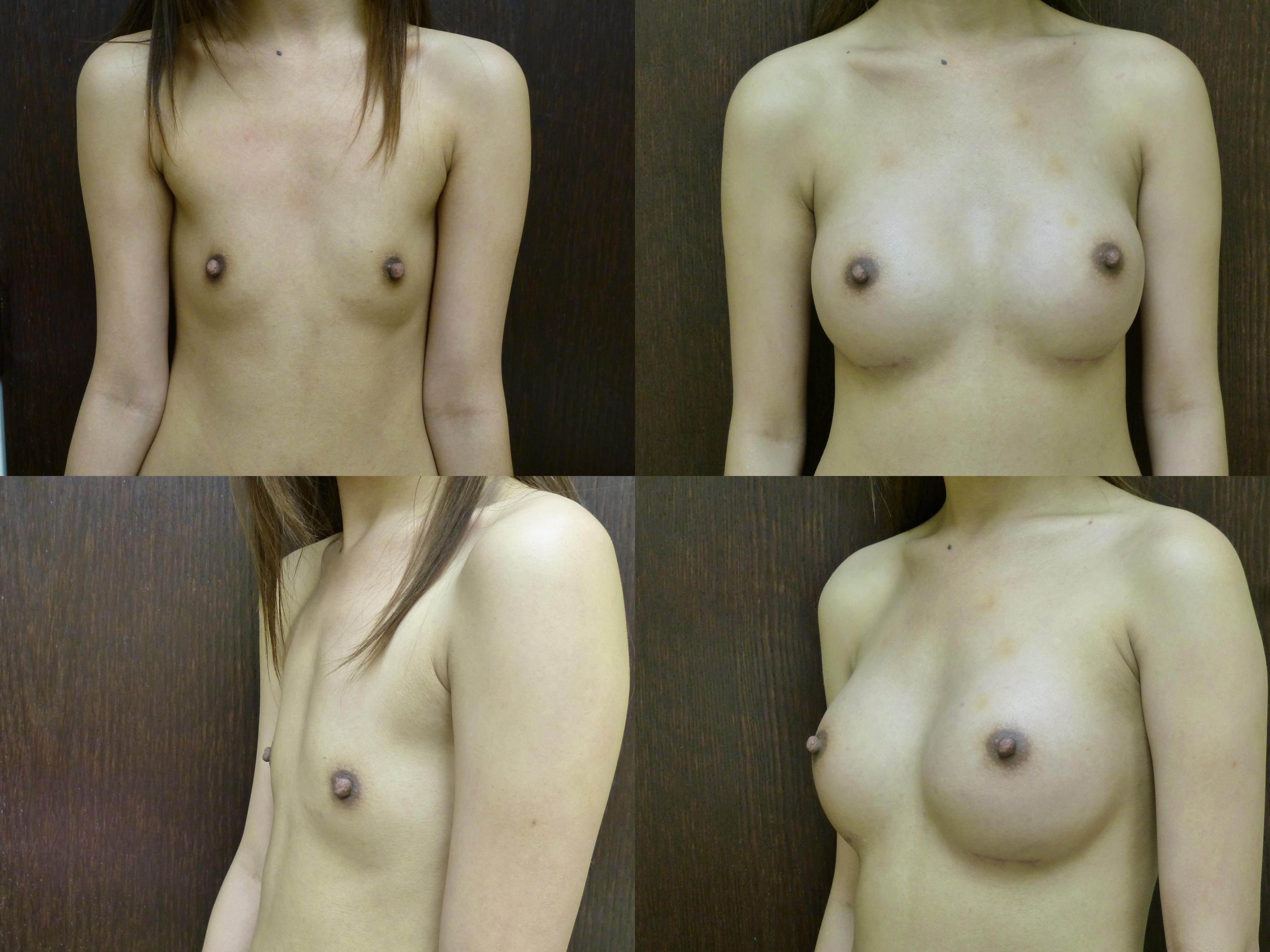 breast enlargement breast enhancement savannah breast augmentation