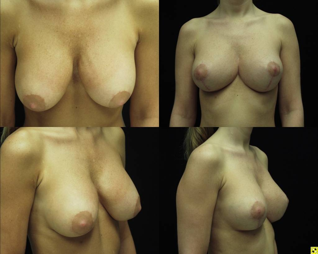 breast augmentation savannah plastic surgery