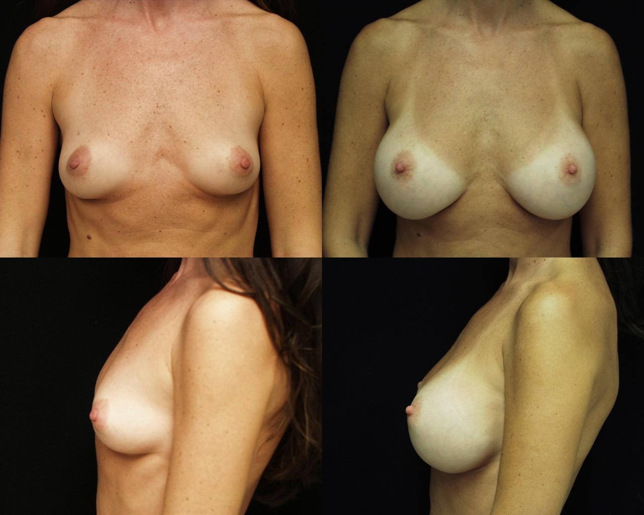plastic surgery savannah breast enhancement