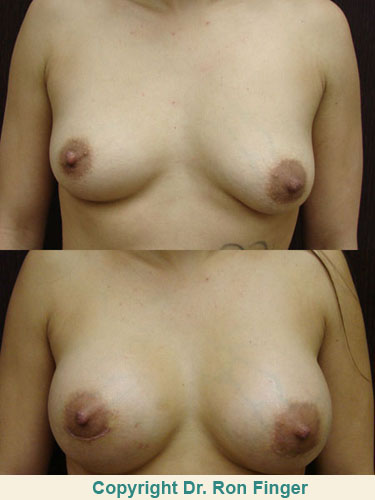 Pre and post op breast augmentation, 350 ml gel implants, prepectoral, inframammary incision.