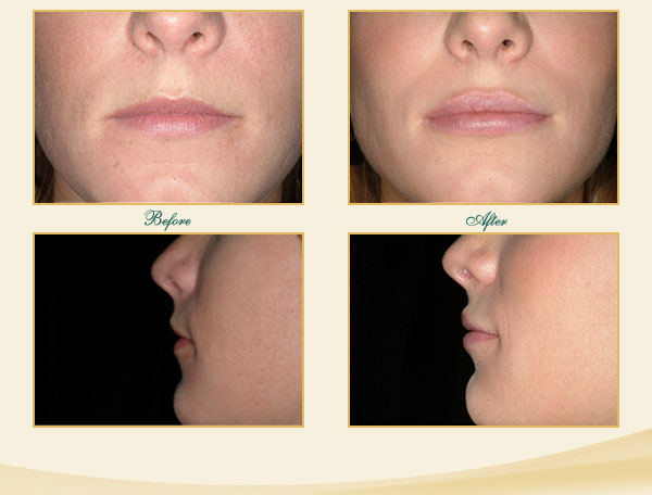 Juvederm Savannah Lip Enhancement