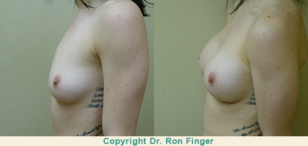 3 weeks following prepectoral 350 Moderate Plus profile gel implants. 32 B to 32 C bra.