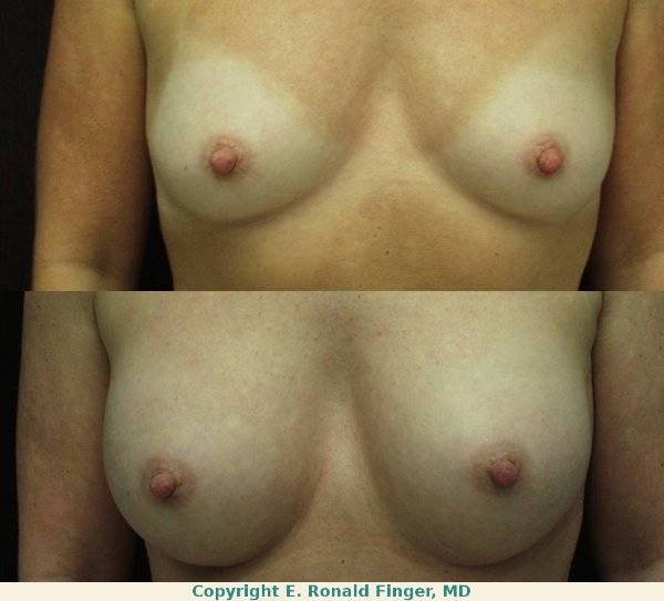 Breast augmentation with 375 ml gel implants in the submuscular position, one year follow-up.