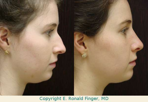 Rhinoplasty Nose Job Savannah