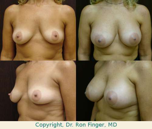 Augmentation mammoplasty with 450 ml Moderate Profile Mentor gel implants, prepectoral (subglandular)