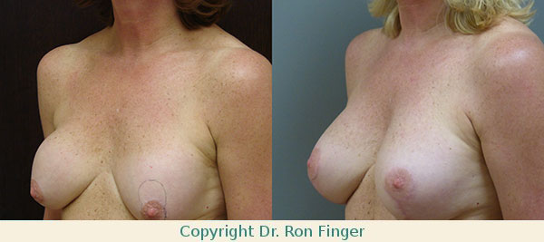 Remove 250 ml implants and replace with 400 ml Memory Gel implants plus Breast Uplift (mastopexy)