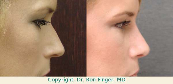Patient had a closed Rhinoplasty (Nose job)