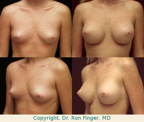 Breast augmentation with 350 ml Moderate Profile gel implants, Prepectoral (subglandular)