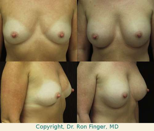 Augmentation mammoplasty with 375 ml Moderate Plus gel Mentor implants, prepectoral (subglandular)