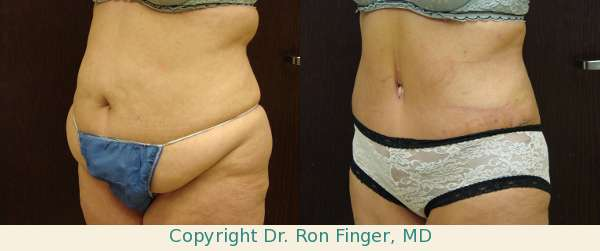 Before and After Tummy Tuck and Liposuctio
