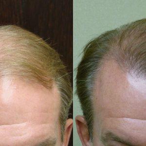 Savannah Male Hair Transplant NeoGraft