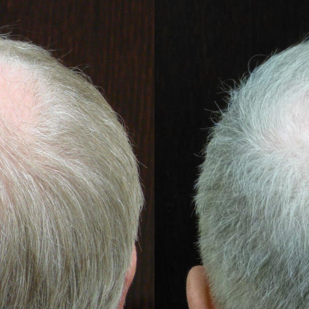 Male Hair Restoration