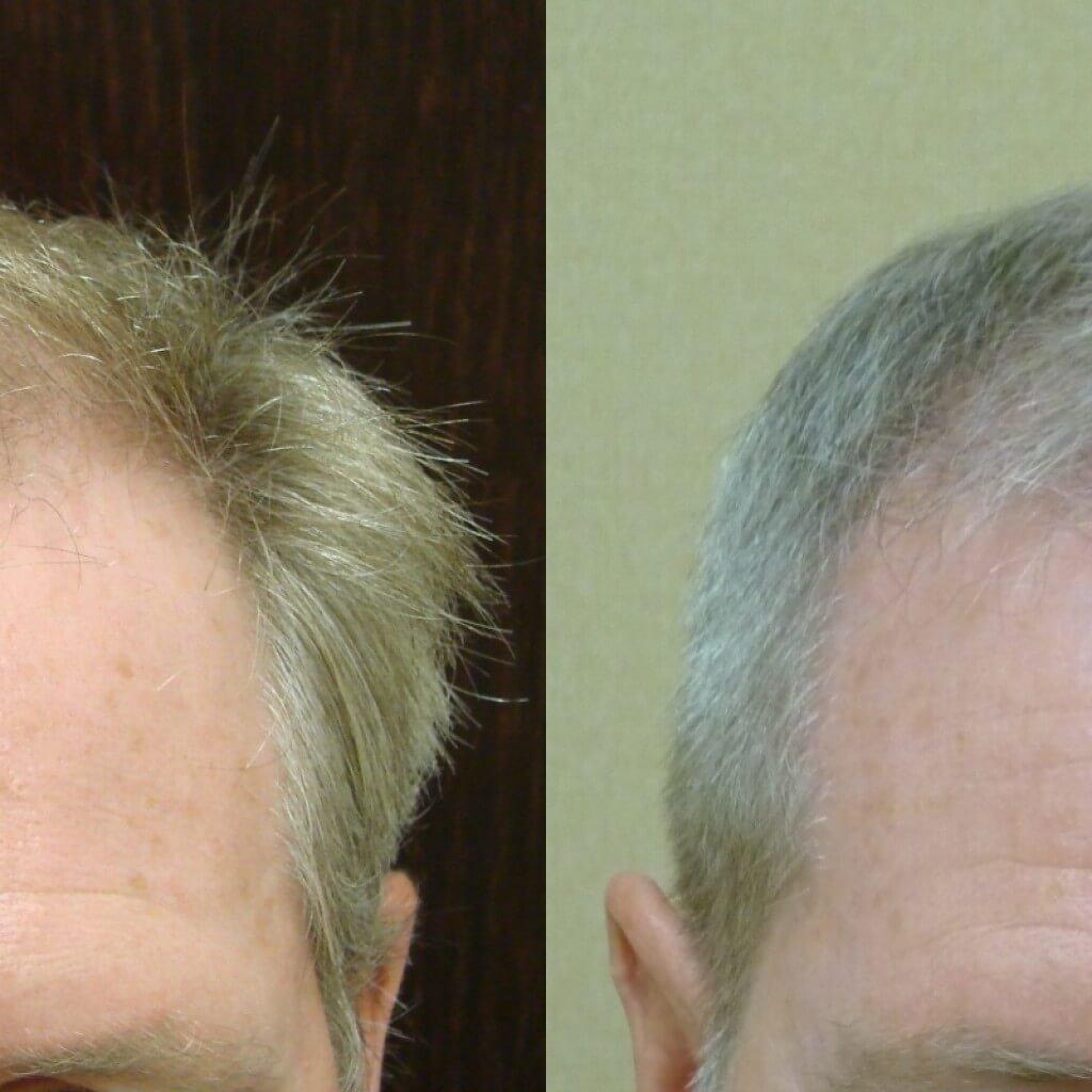 Men's Hair Restoration