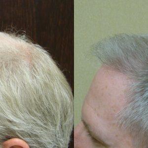 Hair Loss in Men Savannah