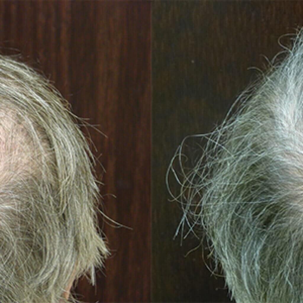 Male Hair Replacement Savannah NeoGraft