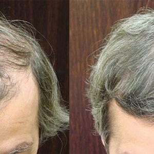 Savannah NeoGraft Hair Transplant