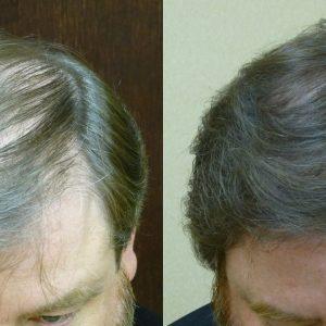 Hilton Head Male Hair Loss Solution