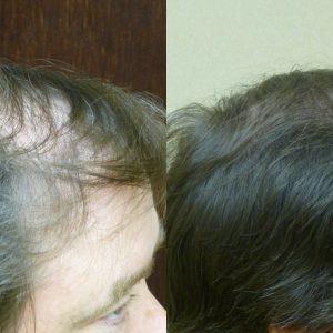 Savannah Male Hair Loss Solution