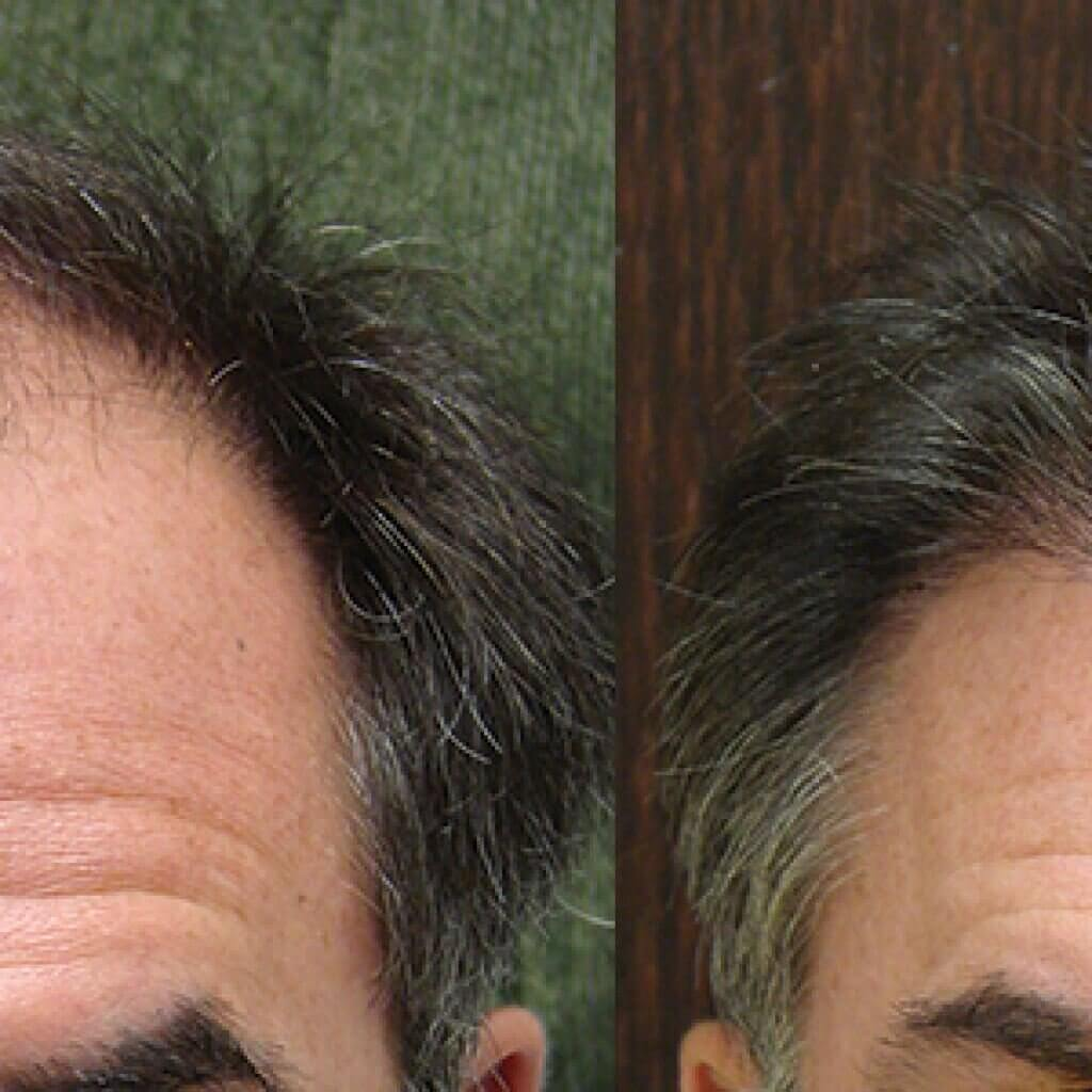 Male Hair Restoration Coastal Georgia