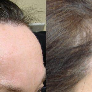 NeoGraft Savannah Female Hair Restoration