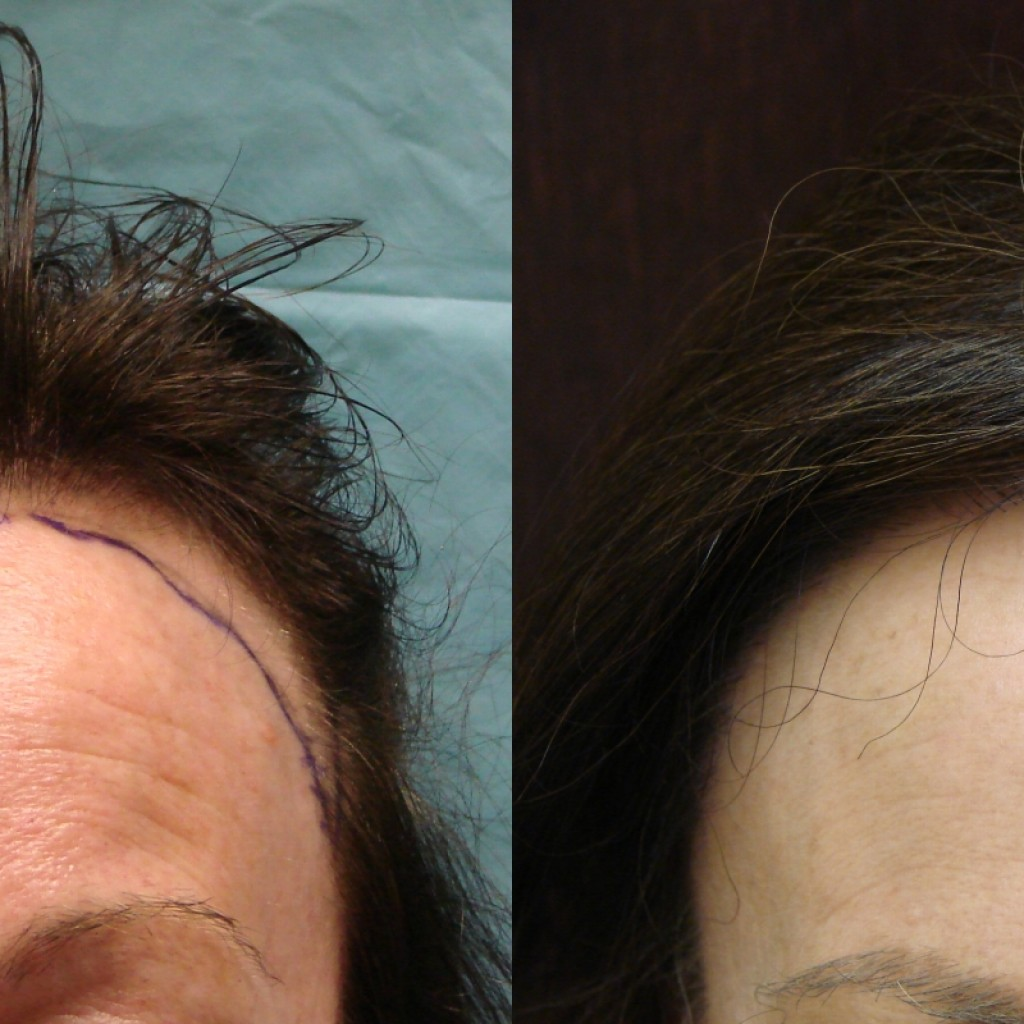 Cost for Neograft is $5-$6 per graft. Female Hair Replacement Savannah NeoGraft