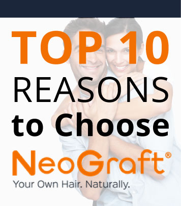 Neograft Hair Transplant overview