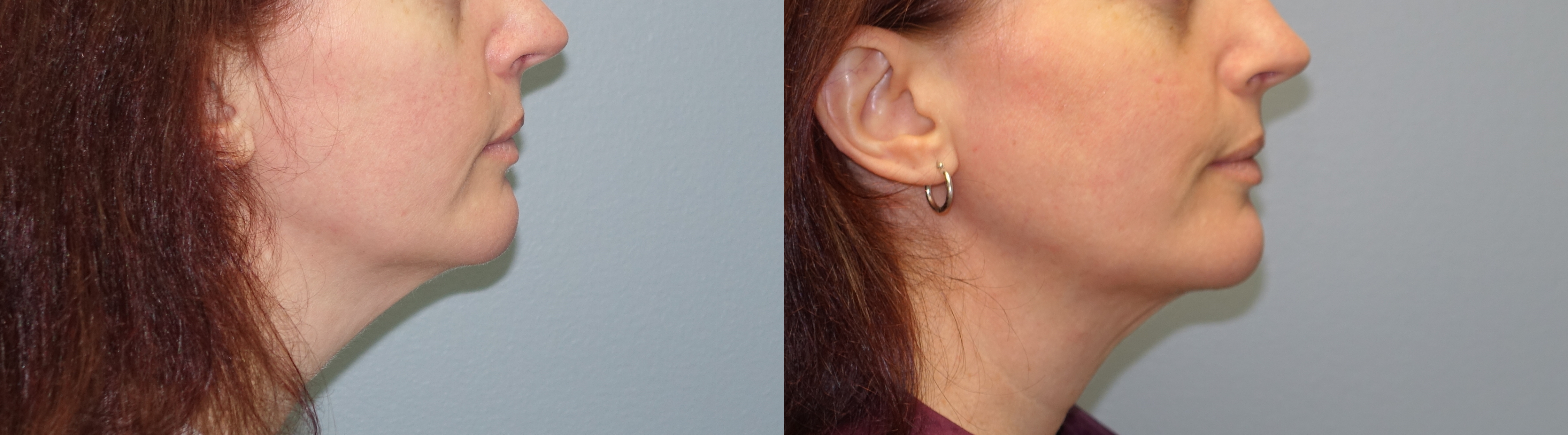 Thermitight and lipo of neck