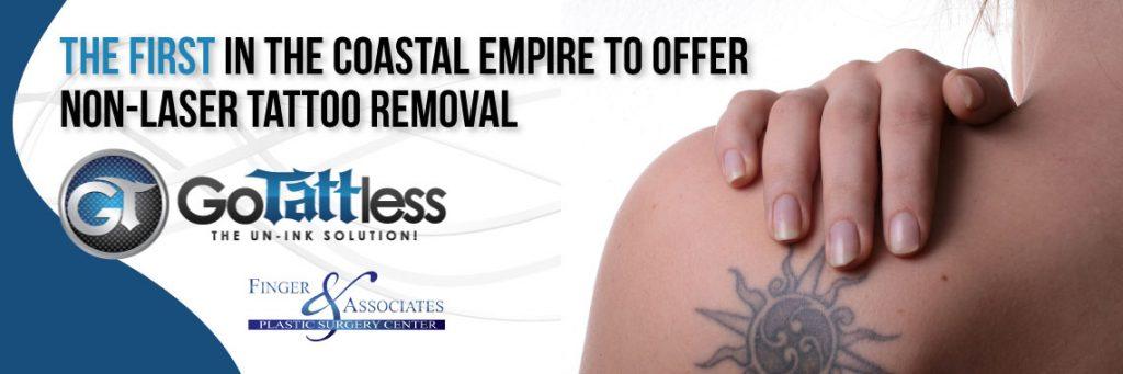 GoTattless Tattoo Removal |Savannah, Georgia & Bluffton, South Carolina