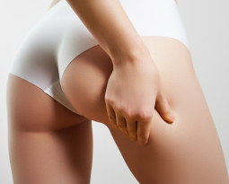 Smooth Your Cellulite With Cellfina
