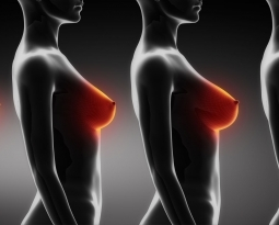 Rapid Recovery Breast Augmentation