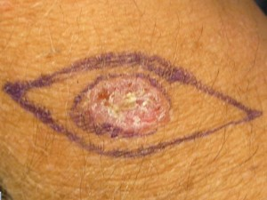 Natural Treatment For Basal Cell Skin Cancer