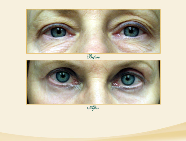 This patient underwent an upper and lower Eye Lid Lift