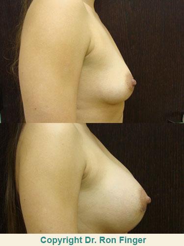 Breast Lift Gallery E. Ronald Finger