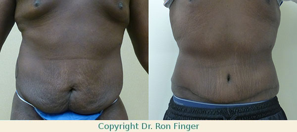 Tummy Tuck Savannah Abdominoplasty