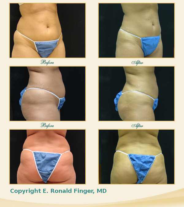 liposuction thighs savannah liposuction abdomen georgia