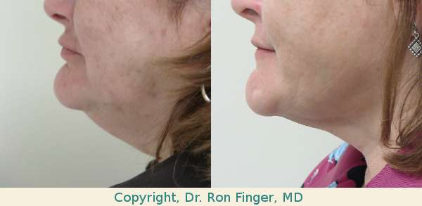 savannah liposuction of the neck
