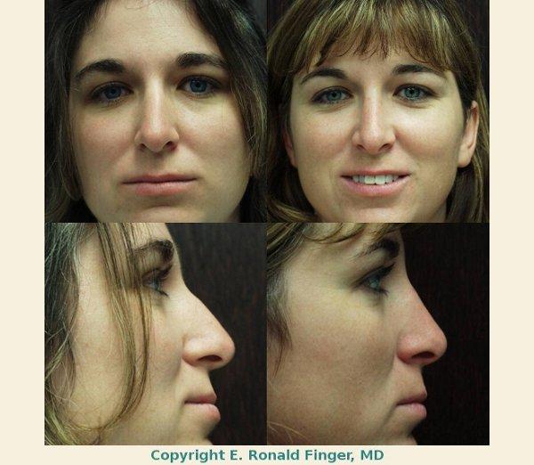 Finger and Associates Nose Job Savannah
