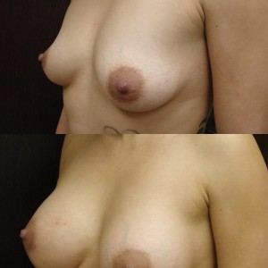 breast Enhancement and augmentation savannah breast enhancement
