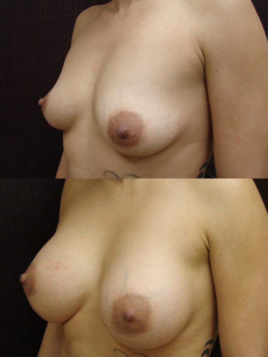 breast Enhancement and augmentation savannah breast enhancement