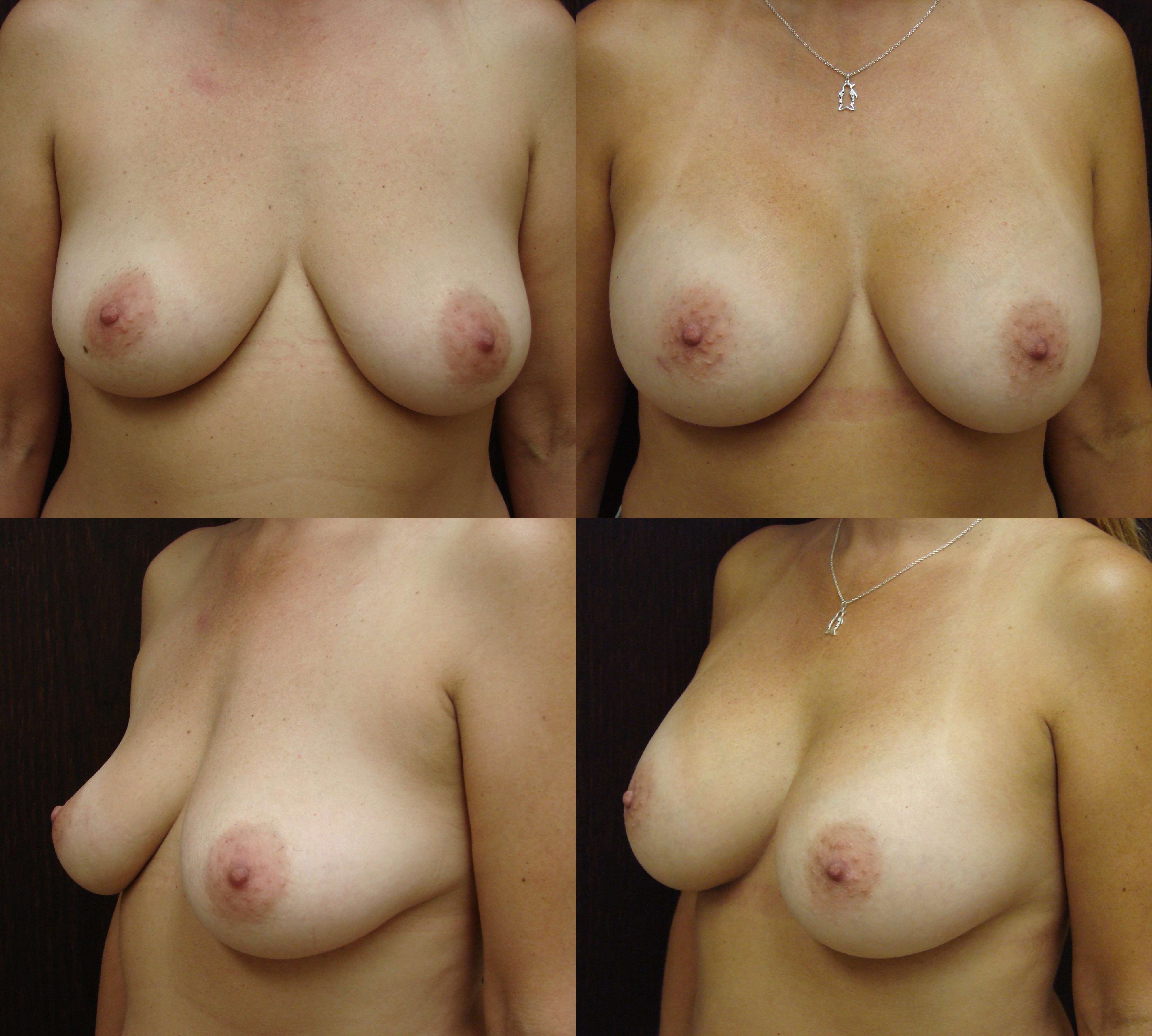Breast implants savannah breast augmentation